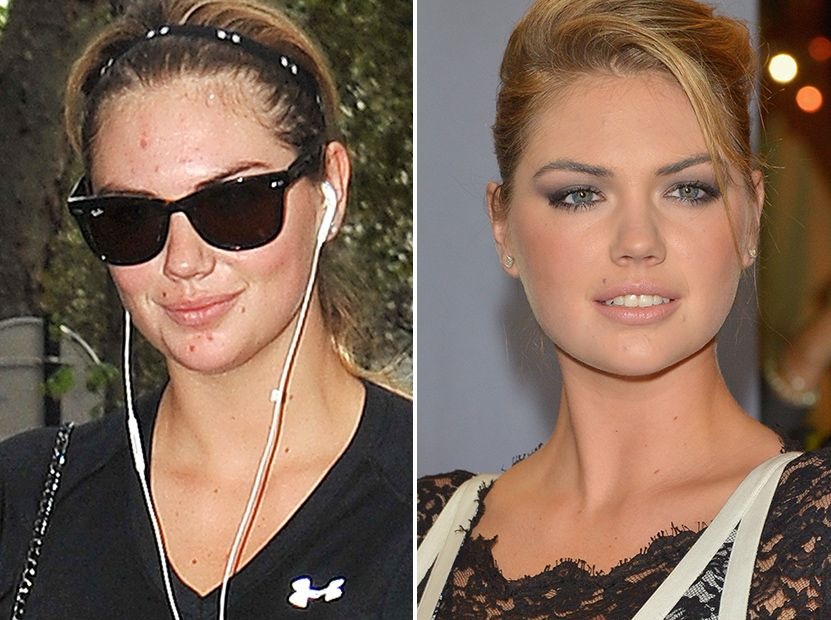 Kate Upton Steps Out Without Makeup Shows She Isnt Flawless - Kate-upton-no-makeup