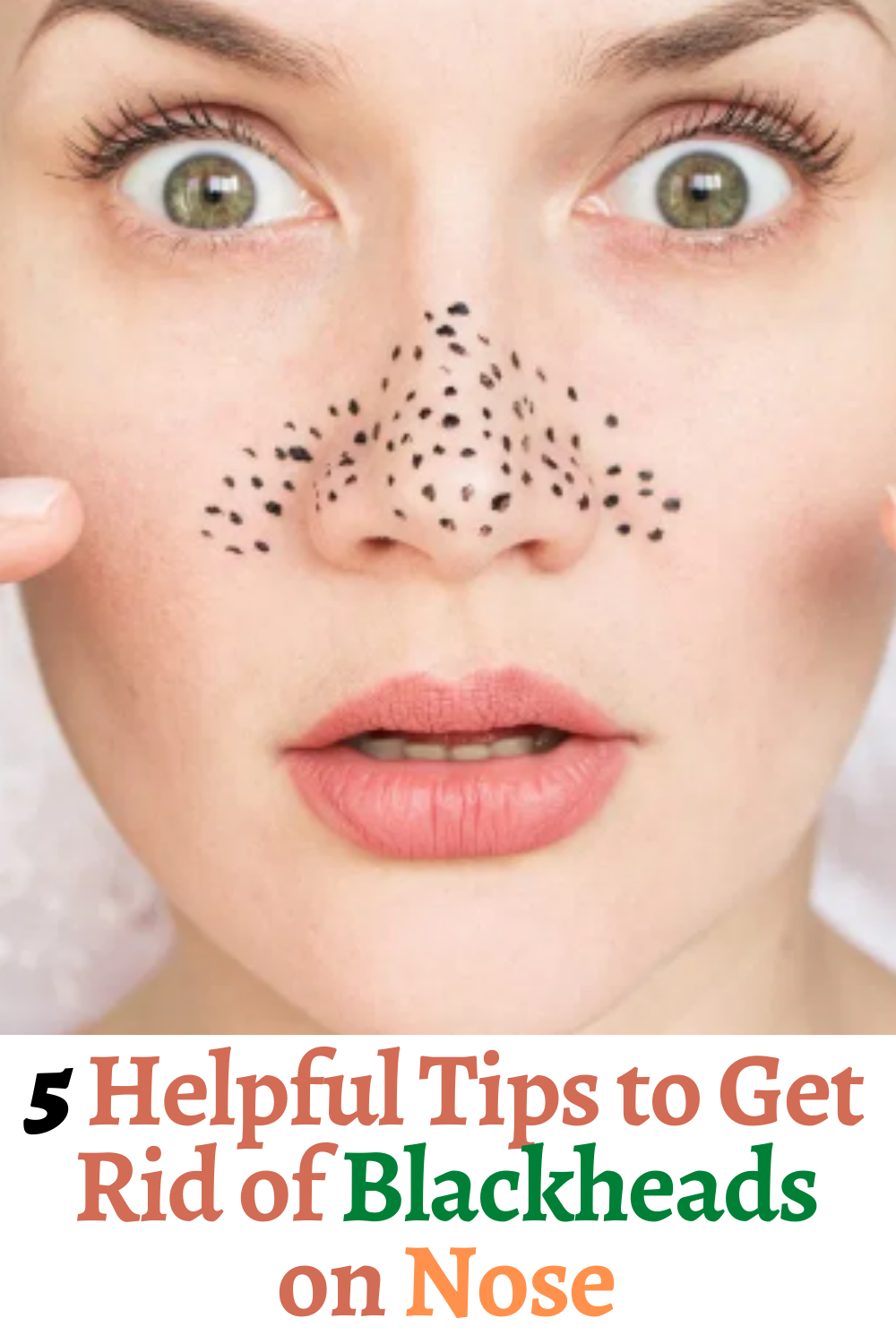 f00d70c67d138f3bd9b295b970a31dc8 - How To Get Rid Of Black Dots On Your Nose