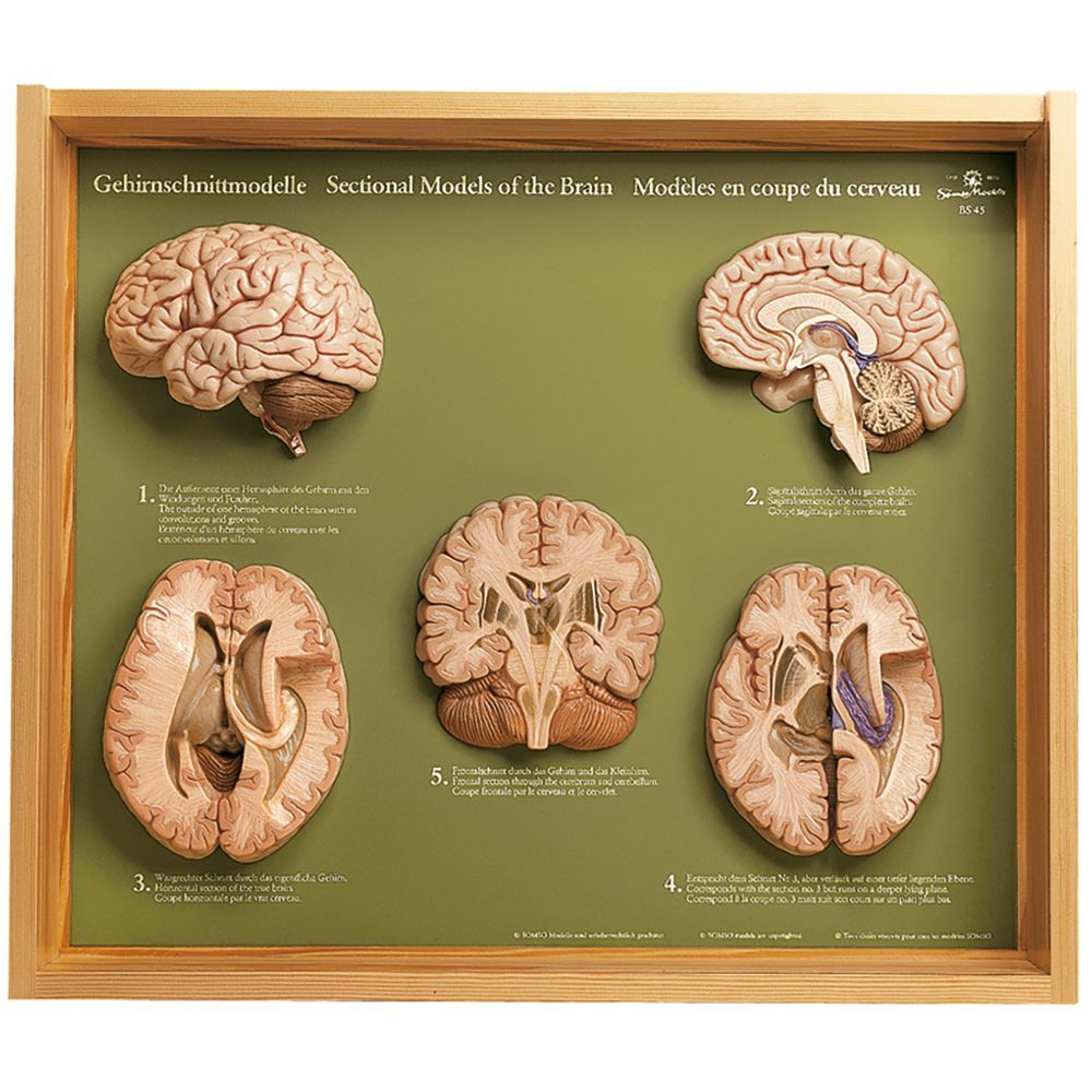 Somso® 5 Section Models of the Human Brain   Carolina.com   Brain models,  Human brain, BrainPinterest