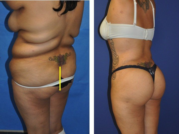 Mommy Makeover In Two Surgeries Tummy Tuck And