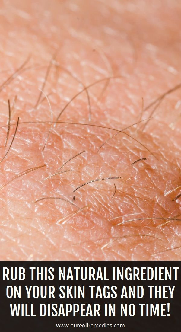 List of Pinterest Causes Of Warts pictures & Pinterest