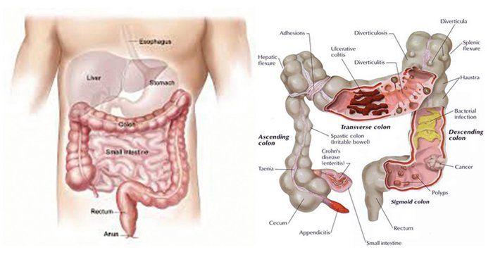 cancer de colon minsal
