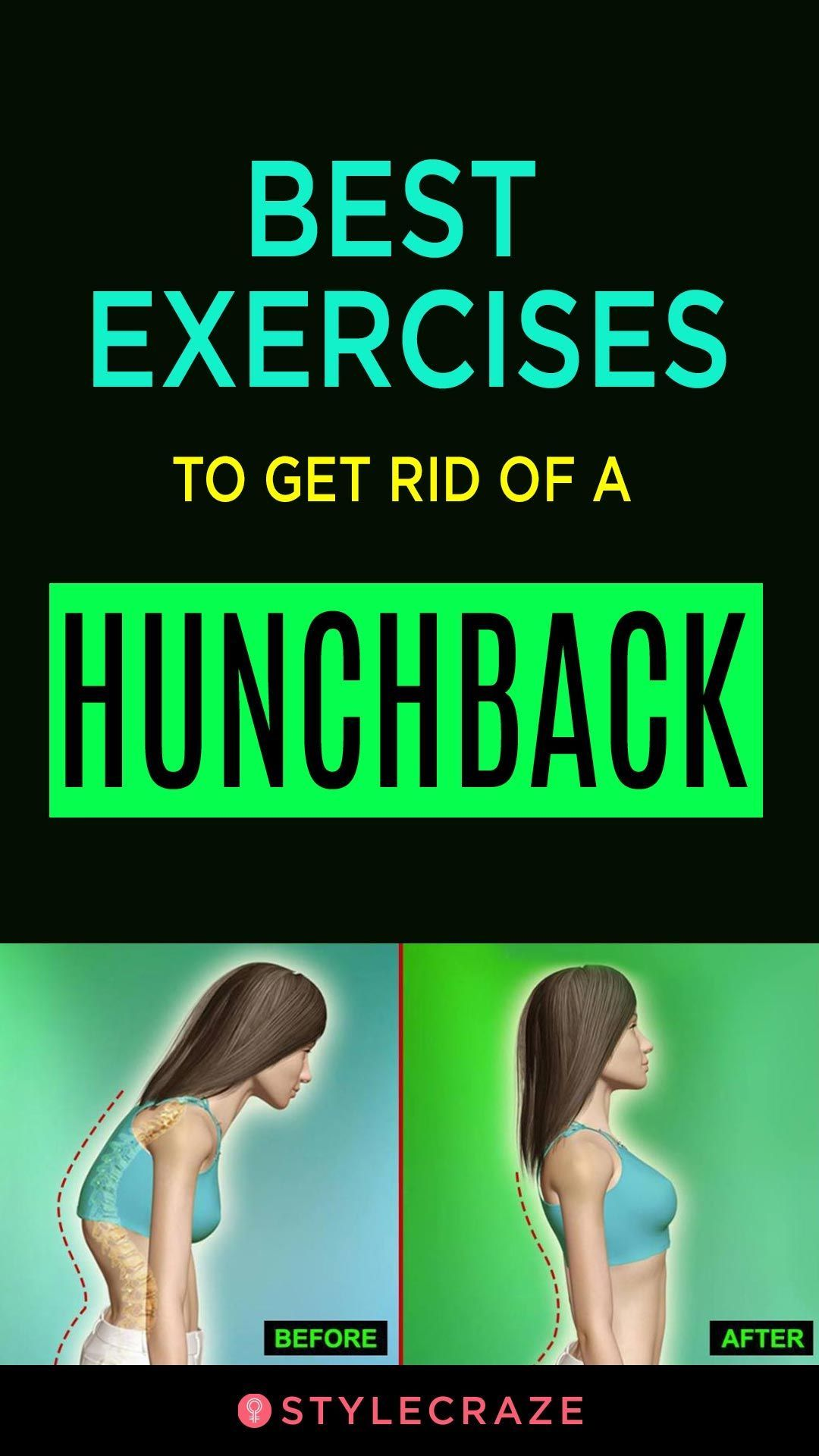 Best exercises to get rid of a hunchback health fitness