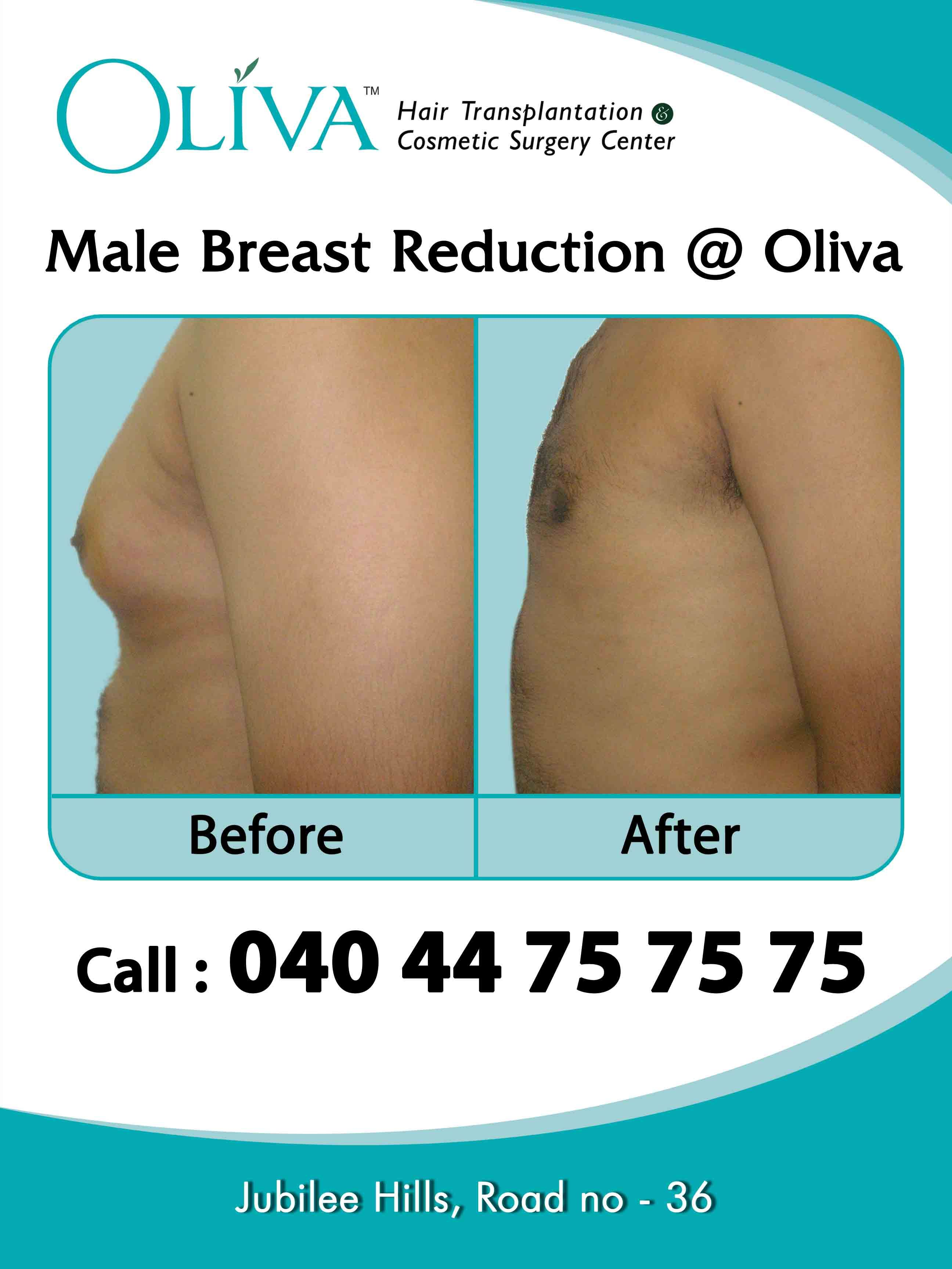 Surgery breast reduction side effects