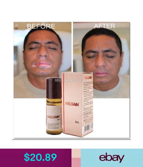 Melgain Lotion For Vitiligo White Spots Patches Re Pigmentation 5ml Exp 2021 In 2020 Vitiligo Health Skin Care Vitiligo Treatment