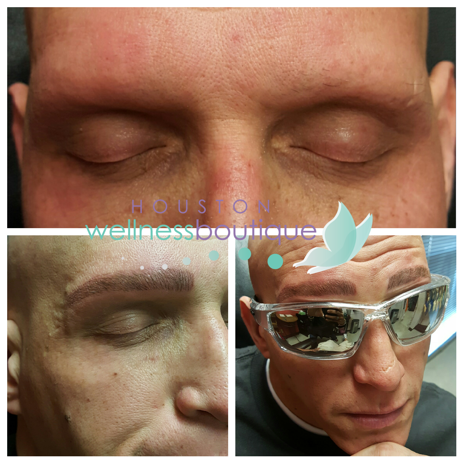 Permanent hair stroke eyebrows for male alopecia for Eyebrow tattoo men