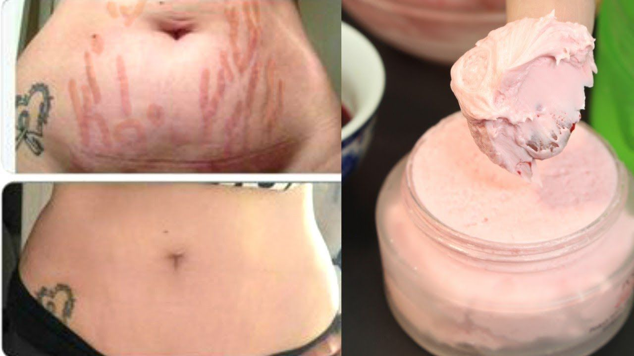 Just Apply This Homemade Cream And It Will Erase Stretch Marks