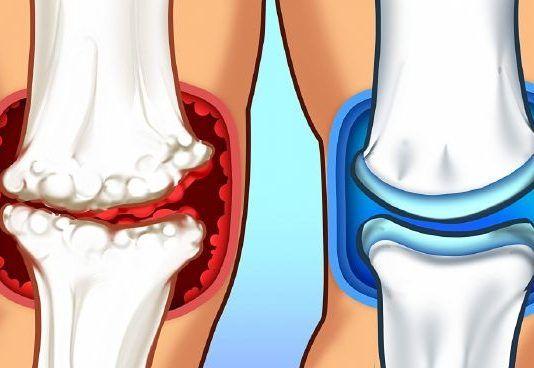 ízületi gyulladás megszabadulni az ízületi fájdalmakról az ízületek fájnak a kocogás után
