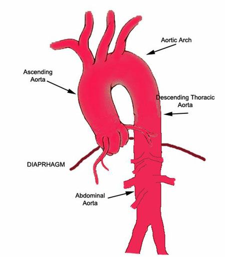Thoracic Aorta Diagram Wiring Diagram Services