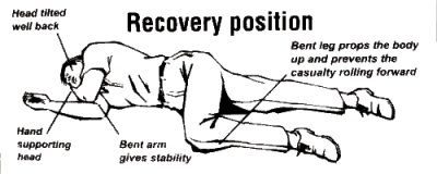 recovery position on left or right side Пои�к в google