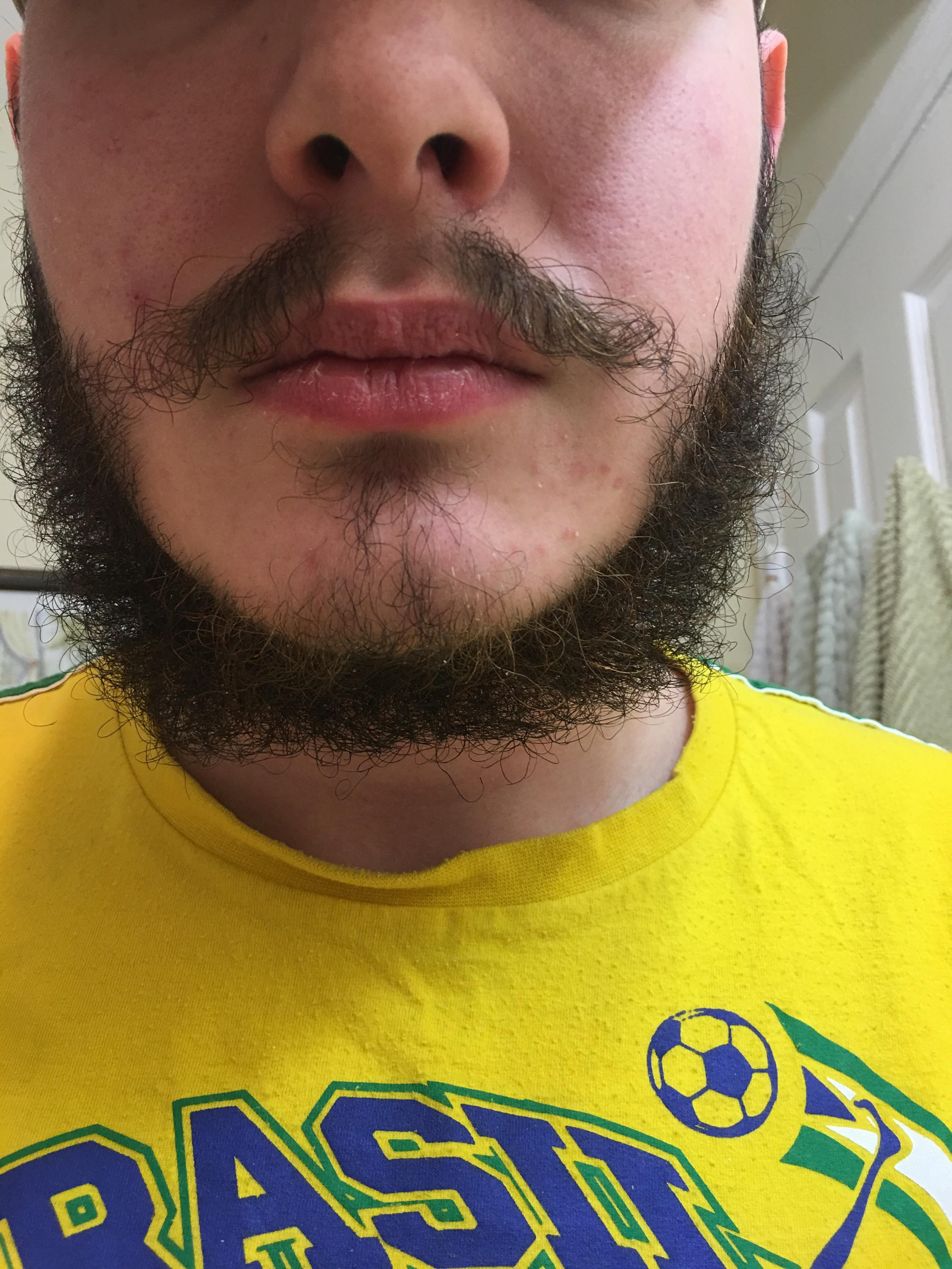 In That Huge Gap In My Beard It S Filled With Little Hairs I M Only