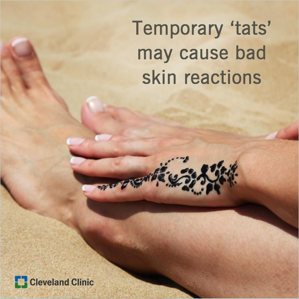 Bad Reactions To Temporary Henna Tattoos Skin Hair Care