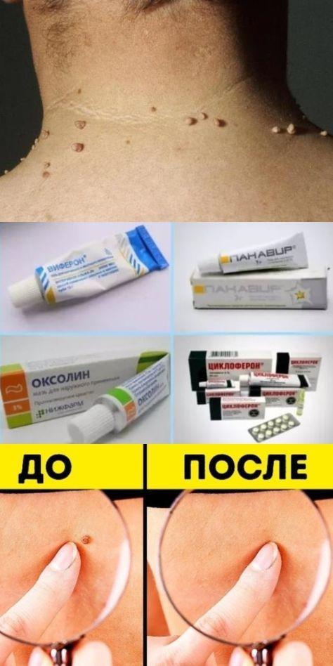 papillom salbe)