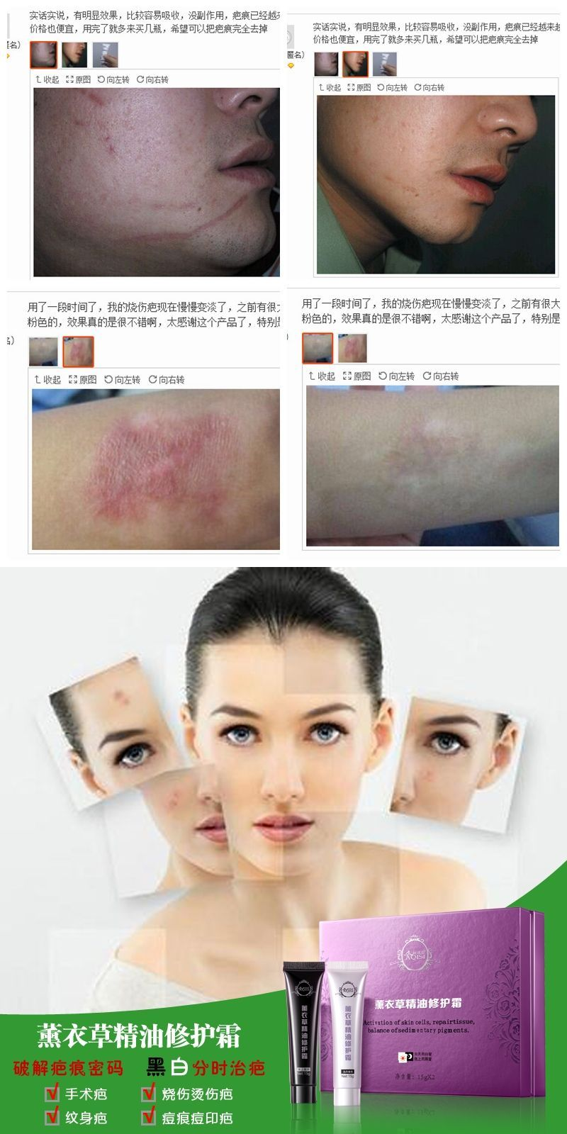 Scar Removal Lavender Scar Cream Acne India Pores Moisturizing