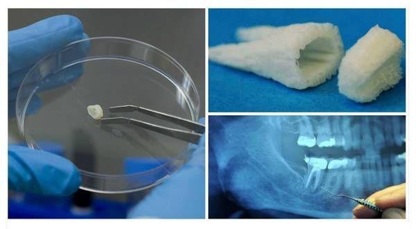 dentistlifeChangeable Dental Hygienist Salary