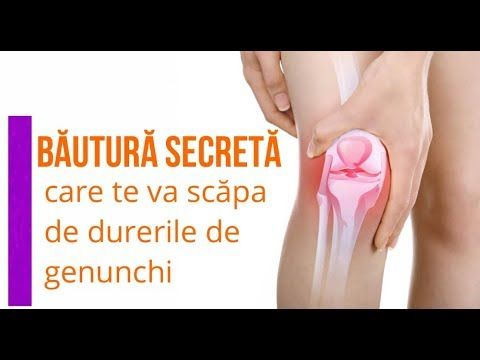tratamentul articulațiilor genunchiului etc artroza brahială reumatică