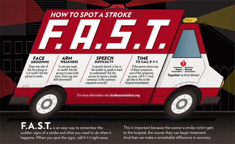 graphic of an ambulance that lists signs of stroke. List is also below in wording in article