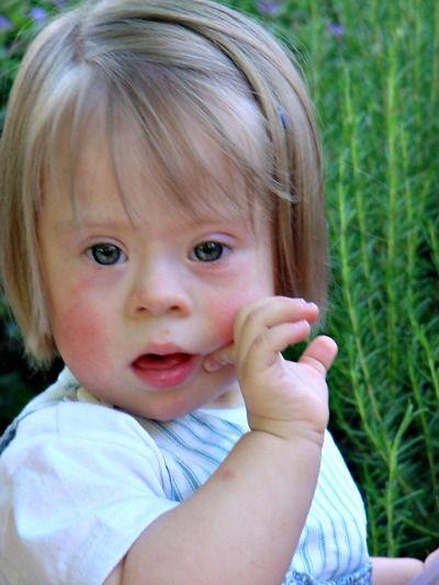 Foto de niña pequeña con síndrome de Down