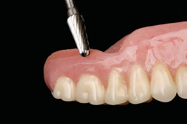Time to get your dentures relined call barthmann denture clinic time to get your dentures relined call barthmann denture clinic at 905 662 7521 did you know that instability and irritation are caused when your solutioingenieria Image collections
