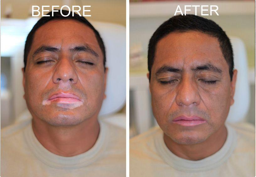 Gallery Vitiligo Camouflage Vitiligo Vitiligo Treatment Vitiligo Skin