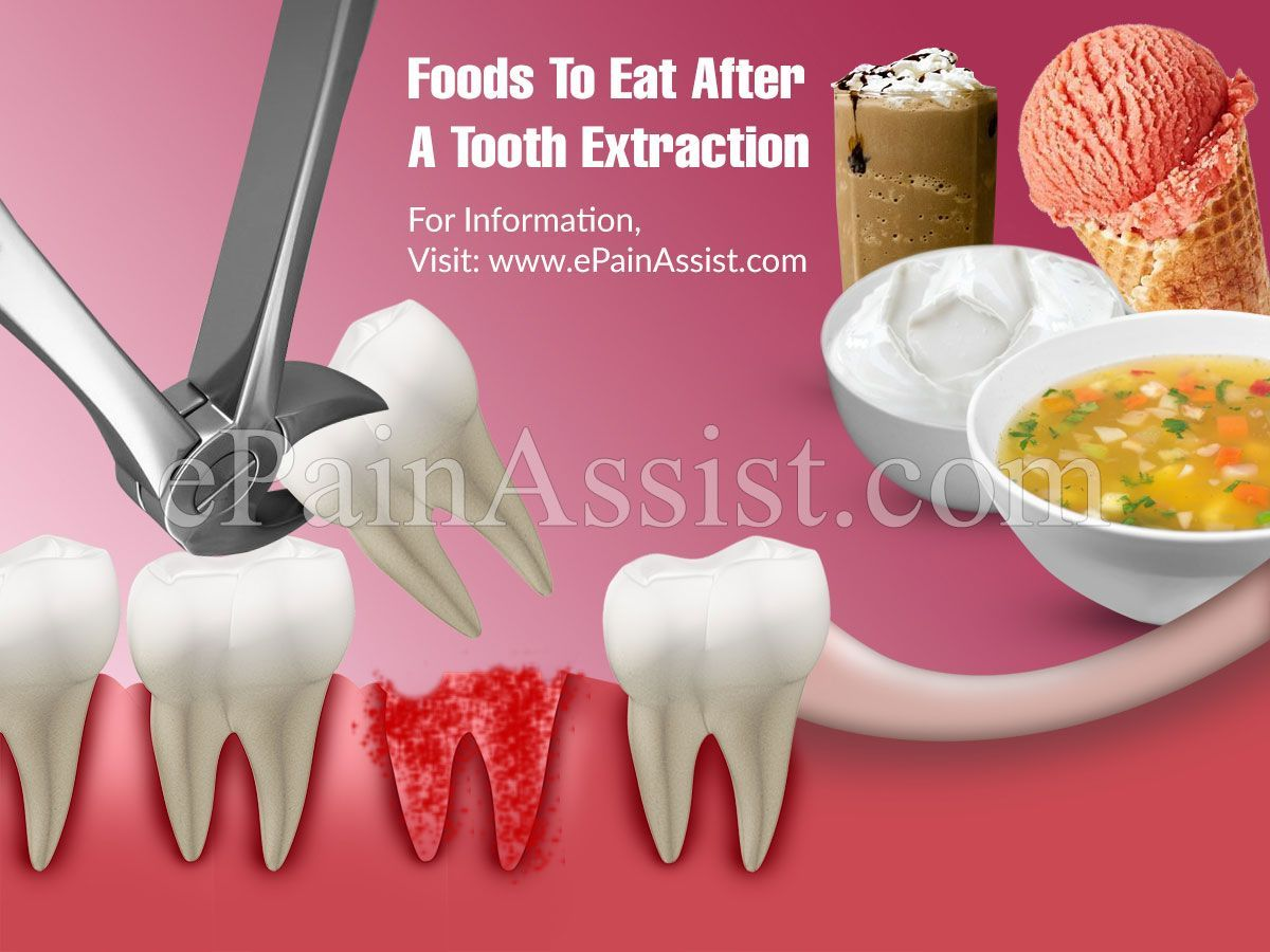 Foods to eat after a tooth extraction unhealthy dental