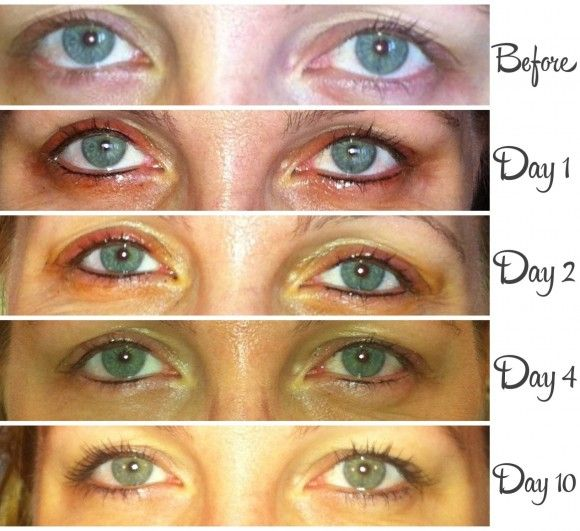 5 Things To Consider Before Getting Permanent Makeup Good To Know