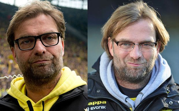 Six Things Jurgen Klopp Can Teach Us About Being A Man Hair Transplant Results Inspirational Celebrities Celebrity Hairstyles