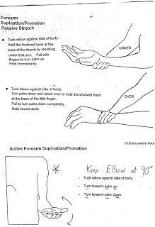 Ulnar Nerve Exercises | Bilateral Subluxing Ulnar Nerves