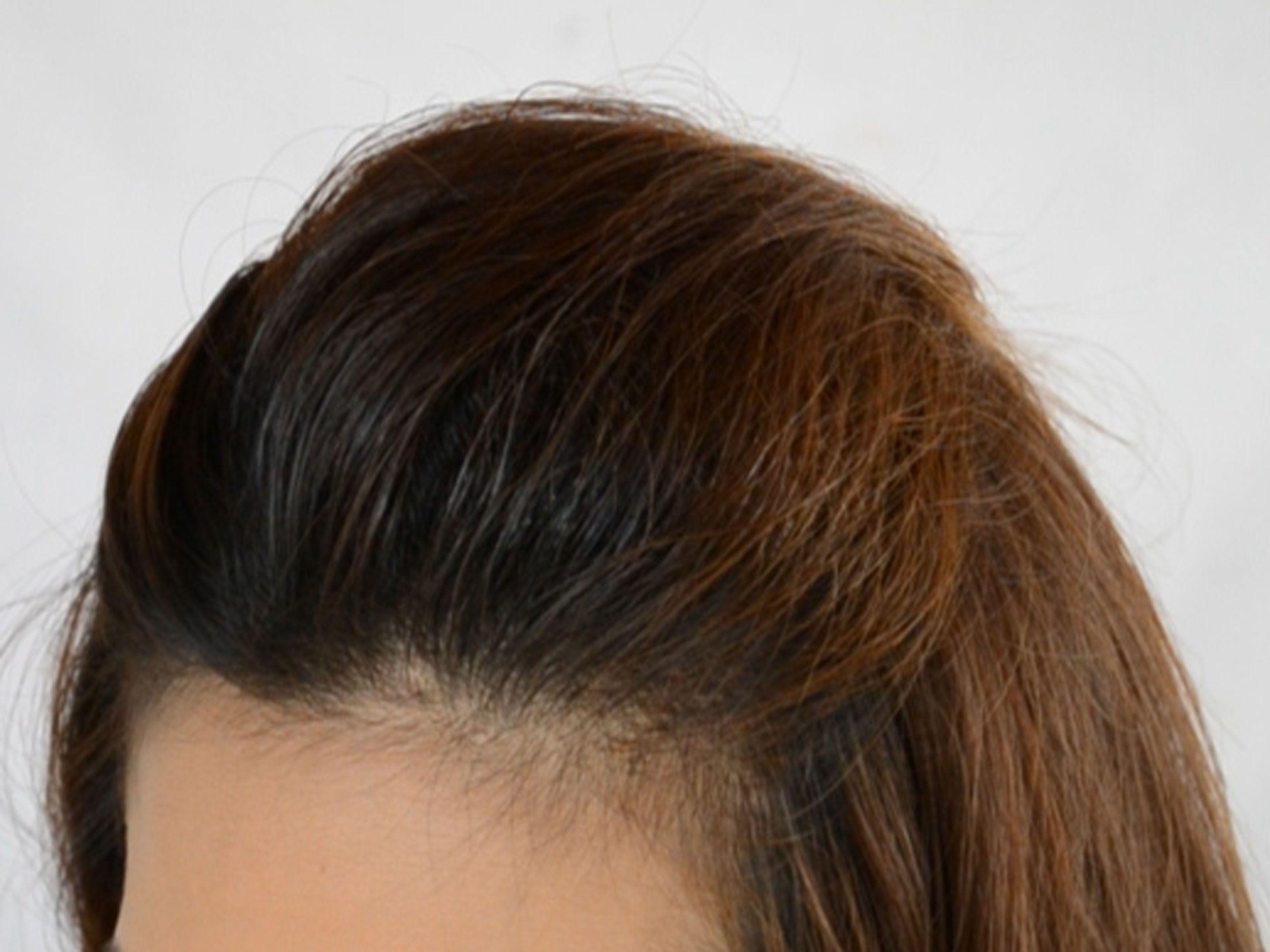 Volumed Hair For Fine Hair Tips Hair Styles How To Backcomb Hair Bump Hairstyles