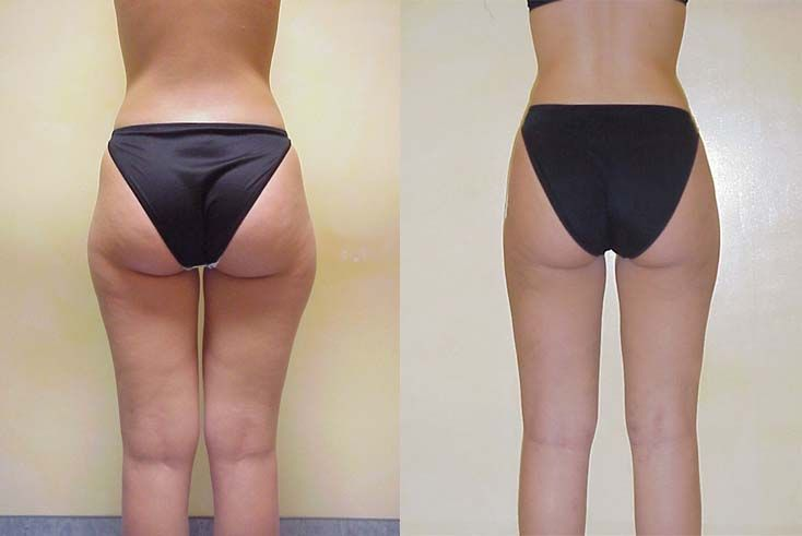 Tickle Lipo Type Of Pal In Inner Outer Thighs Before