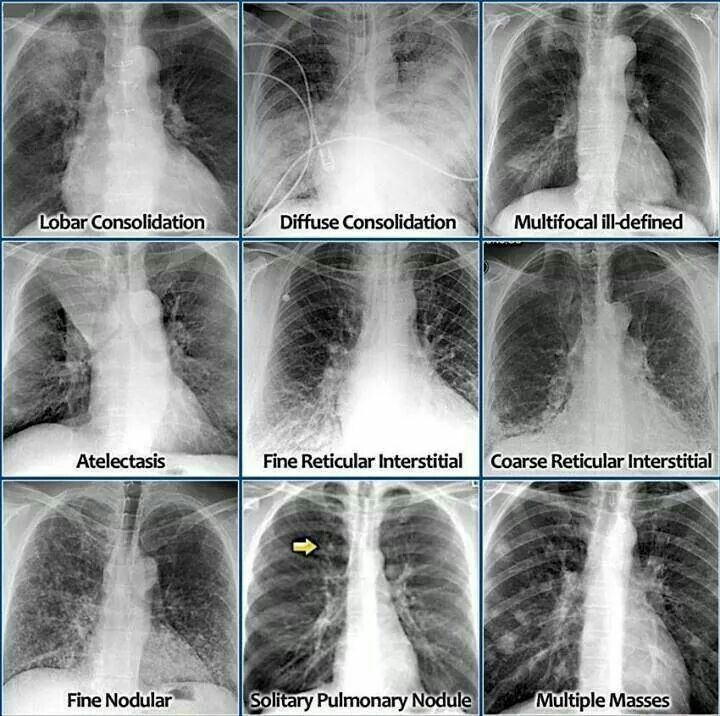 Chest Xray Radiology Medical Imaging