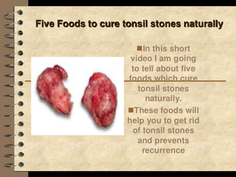 Five Foods To Cure Tonsil Stones Naturally