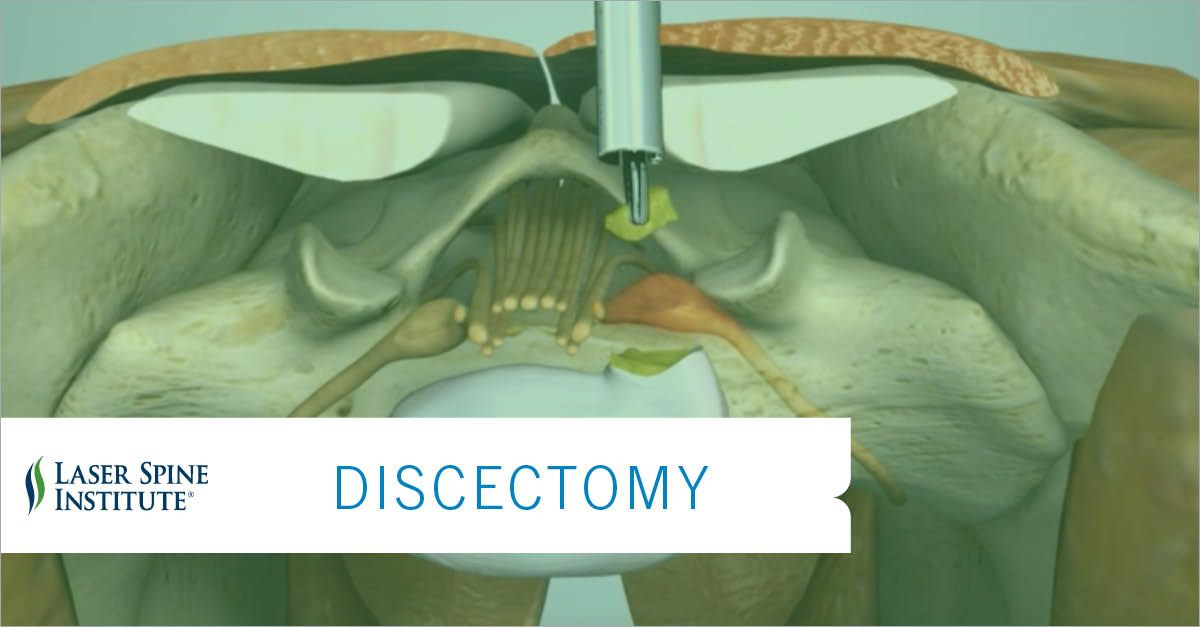 a discectomy is the surgical removal of herniated discbulging disc material that presses on