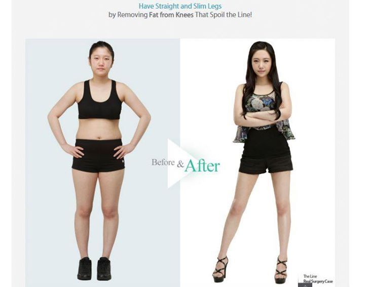 Revision Liposuction Surgery In    | Body Contouring