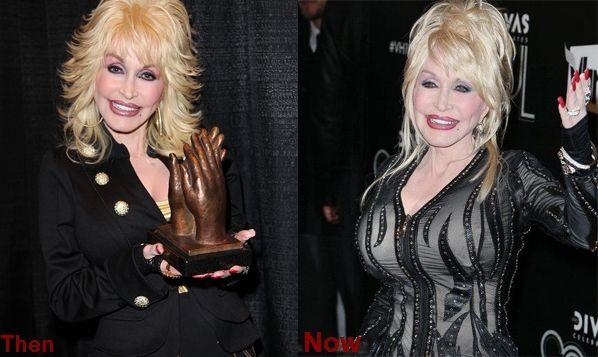 Dolly parton real tits