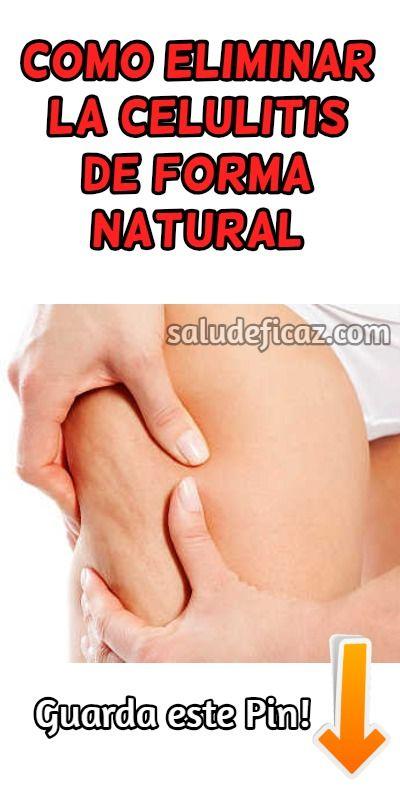 es posible reducir celulitis