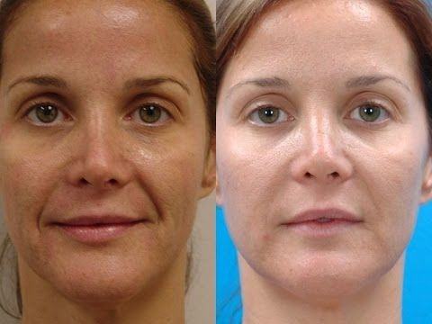 Get rid of facial lines