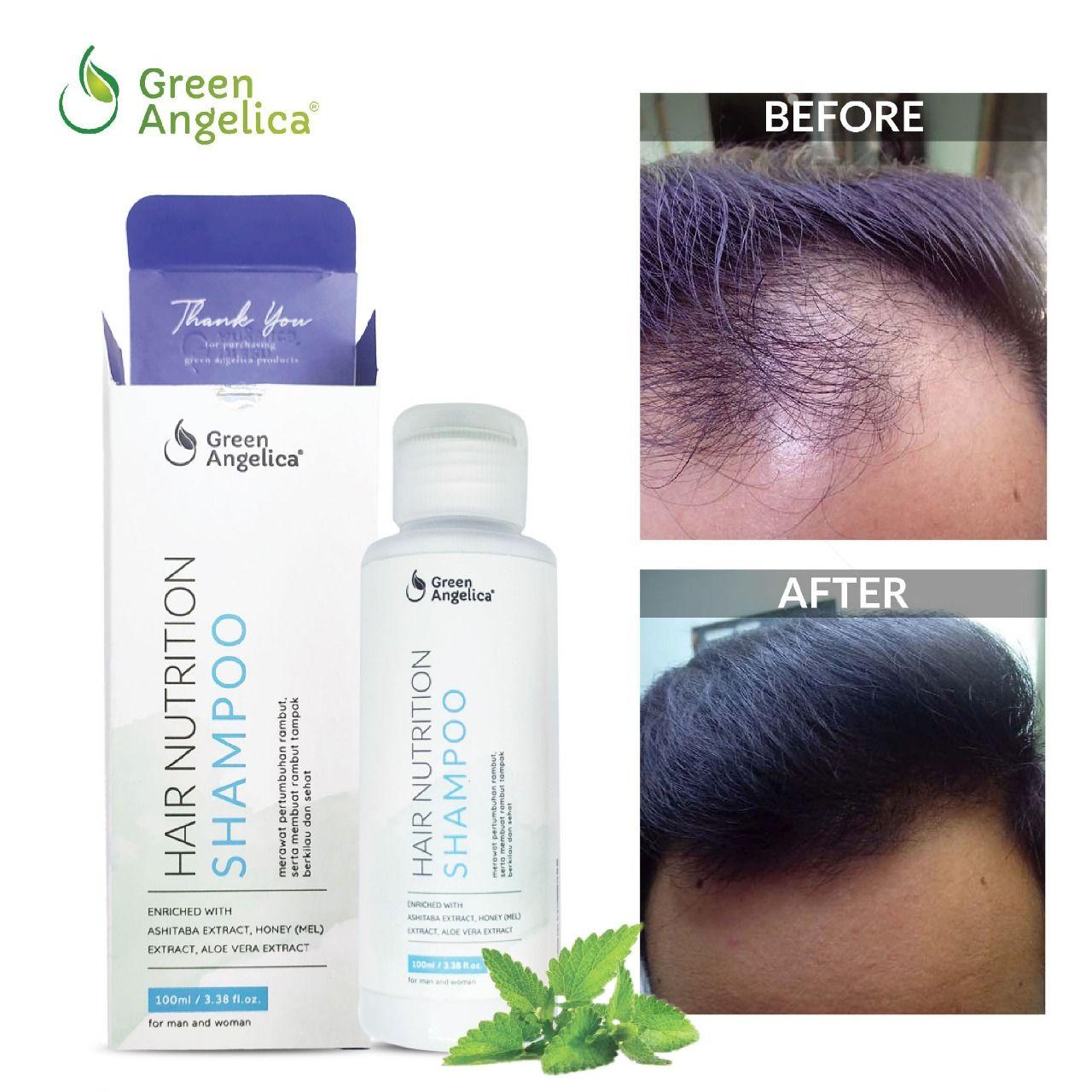 Pin oleh Folti Baffi di Green Angelica Hair Nutrition Shampoo