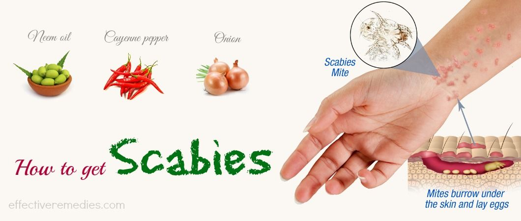 Don't Skip This Article If You Are Suffering From Scabies ...