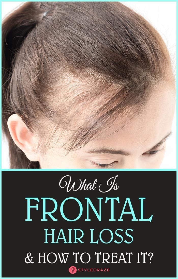 What Is Frontal Hair Loss And How To Treat It? Hair loss