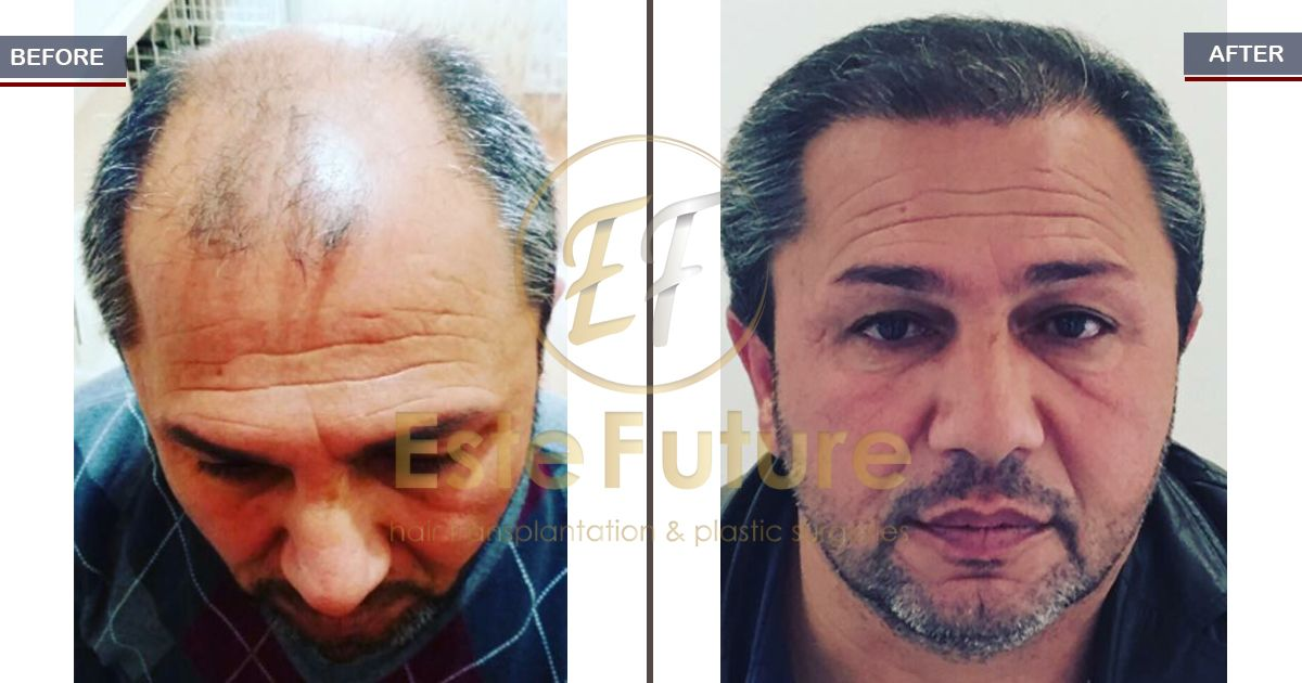 The result of 8 months (5000 #grafts) after #FUE