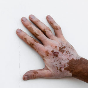 Vitiligo In 2020 Vitiligo Vitiligo Treatment Vitiligo Cure
