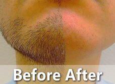 ひげ脱毛効果