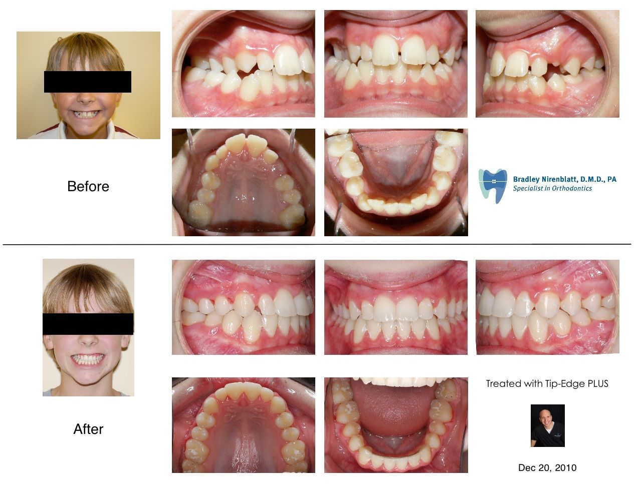 how to fix an overbite without braces