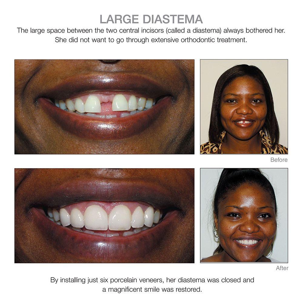Diastema teeth dentist veneers teeth dentist