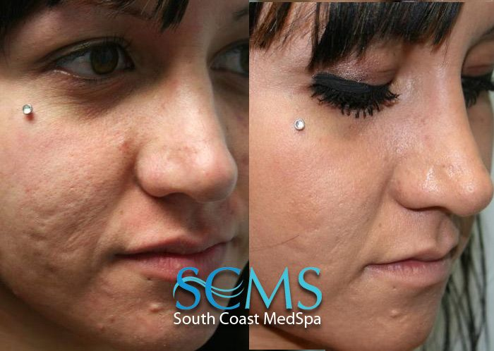 Laser Skin Resurfacing Before And After Laser Skin Resurfacing Skin Resurfacing Laser Skin