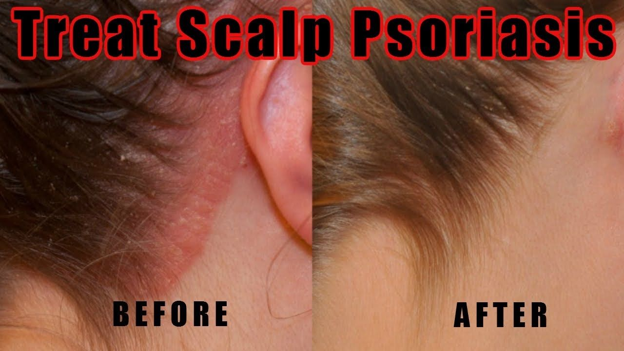what to do about psoriasis on the scalp