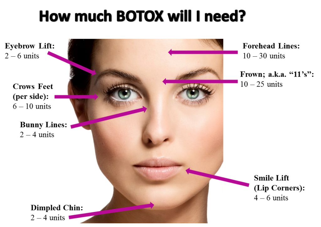 Image Result For Botox Injection Sites Chart Botox Injection