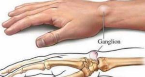 remedios caseros para la debilidad muscular
