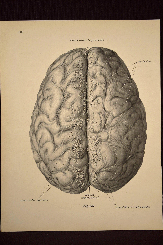 Human Brain Wall Art Human Anatomy Print Medical Wall Decor | Wall ...